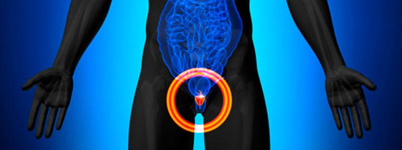 testosterona y cáncer de próstata